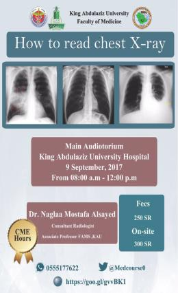 How to read chest Xray Course 9 September 2017